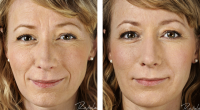 restylane-before-after-full-face